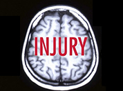 Brain x-ray with injury text